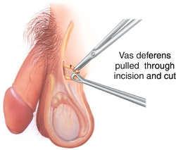 contraception2